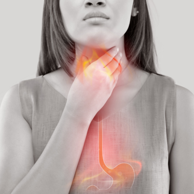 reflusso-gastro-esofageo